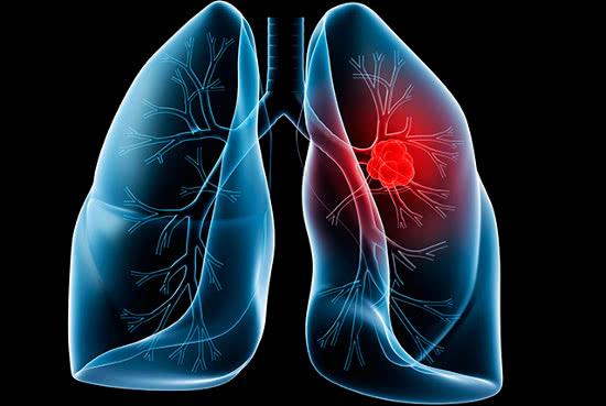 Ung thư phổi, thức ăn cho người bị ung thư phổi