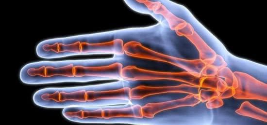 Khớp tay, mối nguy hiểm do bẻ khớp tay