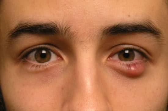 Mẹo chữa lẹo mắt không để lại sẹo
