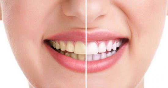 Ngậm thuốc có hại cho răng
