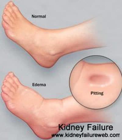 Sưng mắt cá chân, bàn chân là dấu hiệu của bệnh thận