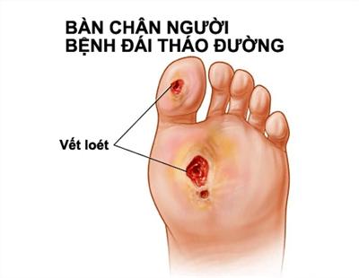 Loét bàn chân có thể bị tiểu đường, dấu hiệu tiểu đường