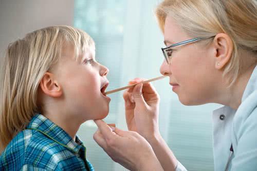 Viêm họng, viêm họng cấp ở trẻ