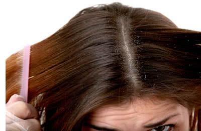 Bệnh nấm tóc, nấm da đầu