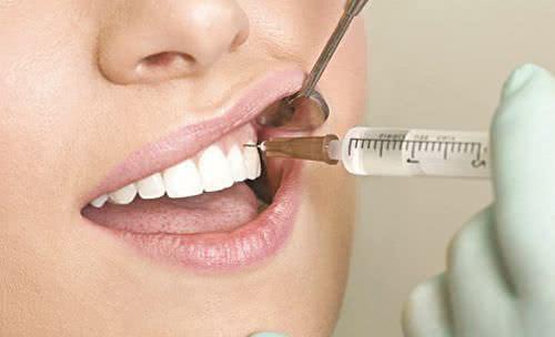 Viêm tủy răng, nguyên nhân gây viêm tủy răng