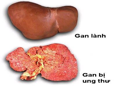 Ung thư gan, nguyên nhân ung thư gan