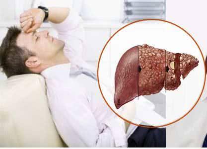 Phòng ngừa ung thư gan, tránh ung thư gan
