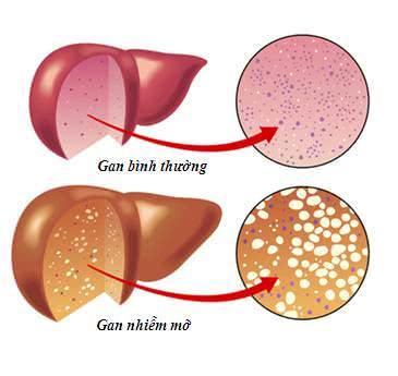 Gan nhiễm mỡ, nguyên nhân gây bệnh gan