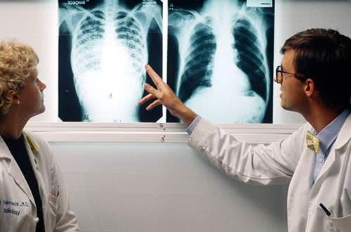 Bệnh lao, dấu hiệu bệnh lao phổi