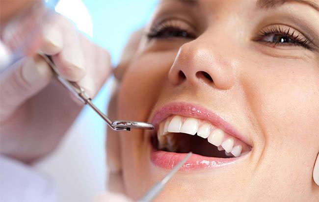Lấy cao răng, tác dụng của lấy cao răng
