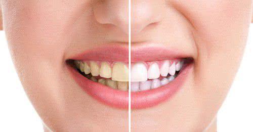 Lấy cao răng an toàn