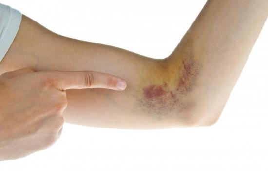 Ung thư máu, biểu hiện sớm ung thư máu