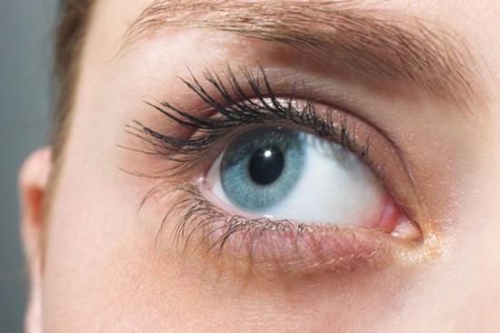 Quầng thâm ở mắt