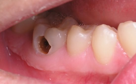 Sâu răng, bài thuốc chữa sâu răng