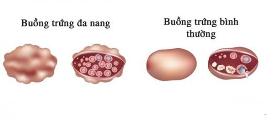 Buồng trứng đa nang