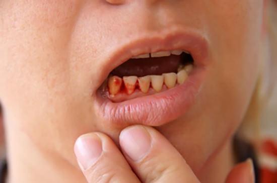 Chảy máu chân răng, thuốc chữa chảy máu chân rằn hiệu quả