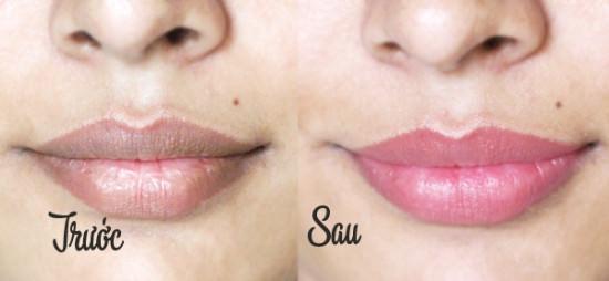 Thâm môi, chữa môi thâm