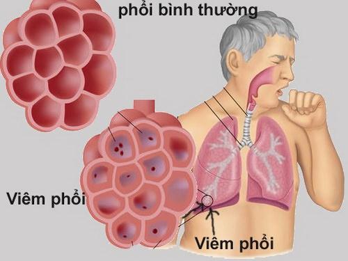 Bạch hoa xà thiệt thảo chữa các bệnh viêm đường hô hấp