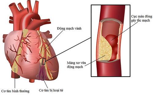 Ngăn xơ cứng động mạch
